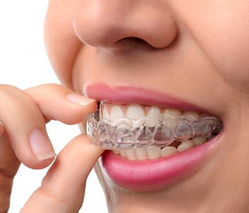 A woman wearing invisalign from Invisalign best provider near Waterloo ON