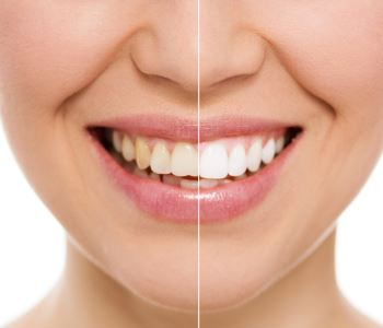 Teeth whitening before and after image Waterloo ON