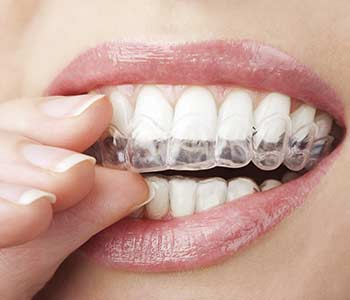 What is Invisalign in Waterloo, ON area
